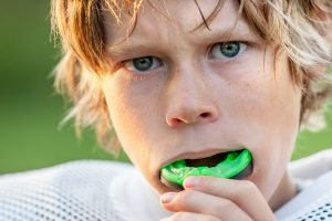 Mouthguards prevent dental injury